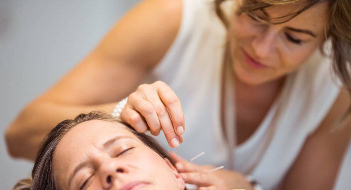 Akupunktur Ohr Nadeln
